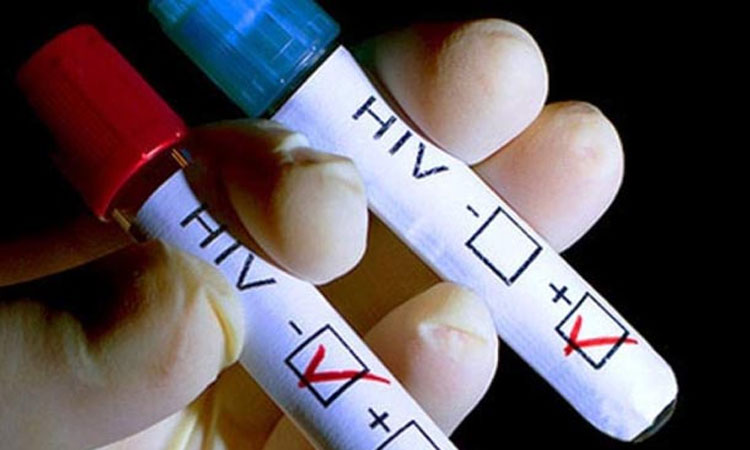 Vence Australia epidemia de SIDA, pero no al VIH